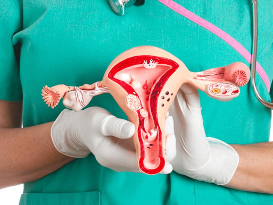 Cáncer de ovario en mujeres